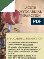 Myocardial Infarction ..Luci