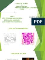 Cancer de Pulmon Diapositivas Alma