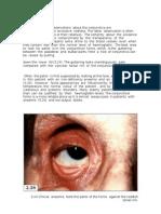 Diagnostico de Anemia, Observando El Saco Interno Del Parpado