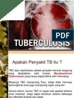 Mater i Tuberculosis