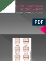 Lesiones Del Cartilago de Crecimiento