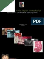 non odontogenic maxillofacial infection infecciones no odontogenicas maxilofacial