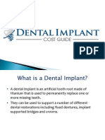 Guide to Dental Implants Cost and Procedure