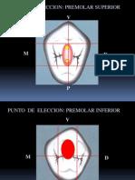 Acceso Endodontico en Premolares
