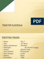 Referat Fraktur Clavicula