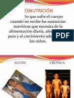 Clases de Desnutricion