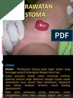 Perawatan Stoma