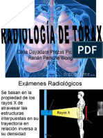radiografatorcica-120225164658-phpapp02.pptx