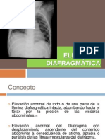 Elevación Diafragmática.pptx