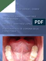 Periodoncia II