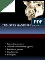 Lesiones Benignas y Malignas en Maxilares
