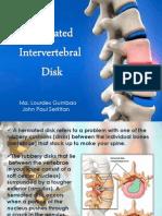 Herniated Intervertebral Disc