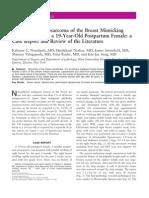Pleomorphic Liposarcoma of the Breast Mimicking