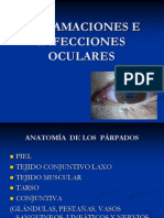 Inflamaciones e Infecciones Oculares