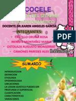 MUCOCELE.pdf