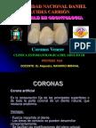 72804971-56555344-Coronas-Veneer