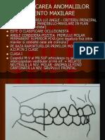 Clasificarea anomaliilor dentomaxilare