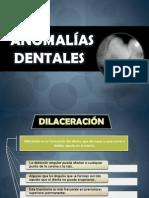 2da Parte de Anomalias Dentales