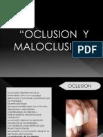 Expo Oclusion Maloclusion