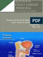 2- Hipertrofia Prostatica y CA de Prostata
