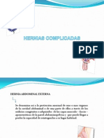 Hernias Complicadas