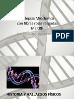 Epilepsia Mioclonica Con Fibras Rojas Rasgadas
