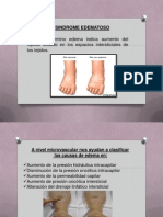 Diapositivas de Sindrome Edematoso