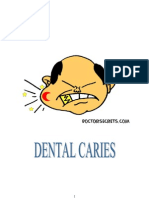 Dental Caries Vijita