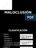 Maloclusiones I, II , III y MINSA