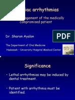 arythmia