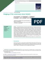 2013 Imaging of the Cavernous Sinus Lesions Diag Interv Imag