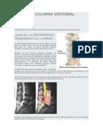Desgaste Columna Vertebral Lumbar