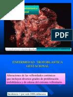 enfermedad trofoblastica 1