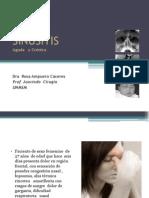 2.Sinusitis
