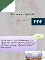 Perdarahan Epidural - Dotti