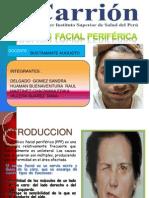 PARÁLISIS FACIAL PERIFÉRICAexposicion