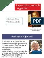 Manifestaciones clínicas de Sx de Angelman