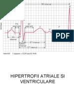 Hipertrofii Atriale Si Ventriculare-powerpoint