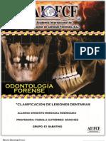 Clasificacion de Lesiones Dentarias