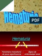 4.Hematuria