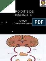 4698755-TIROIDITIS-DE-HASHIMOTO