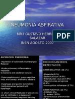 Neumonia Aspirativa en Pediatria