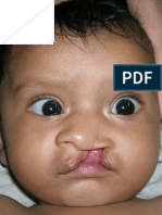 Cleft lip and Palate information  brochure