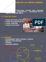 Microbiología de la Caries Dental