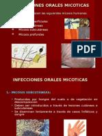 Infecciones orales de Origen Micótico