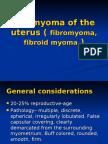 Leiomyoma of the Uterus