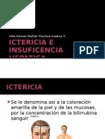 Ictericia e insuficencia hepatica..