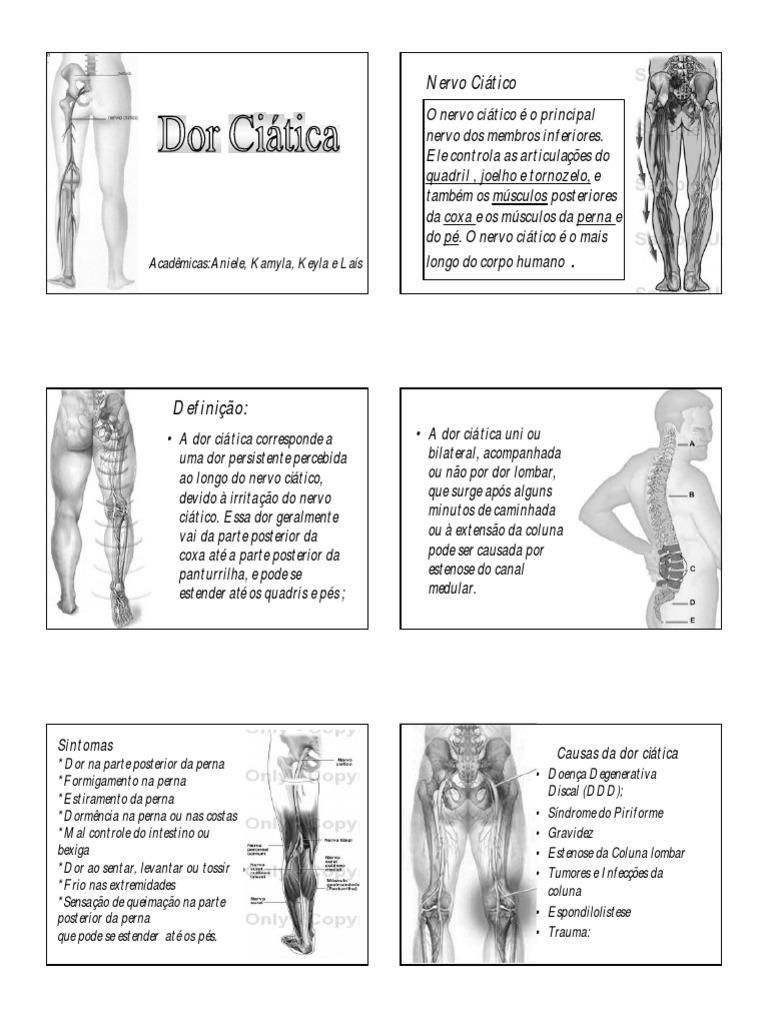 sintomas de ciatica por tumor
