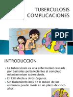 Tuberculosis Complicaciones