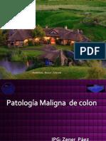 Patologia Maligna de Colon